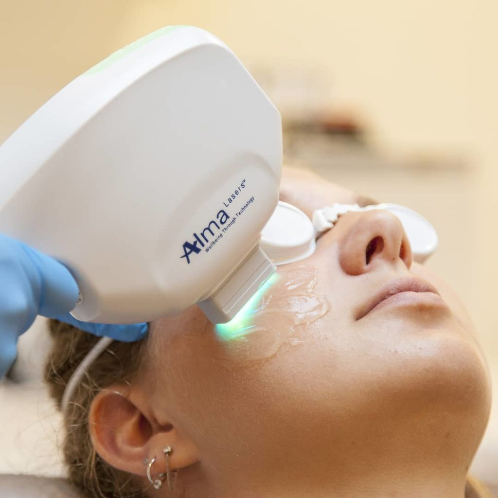 IPL treatment of pigmented lesion and sun spots