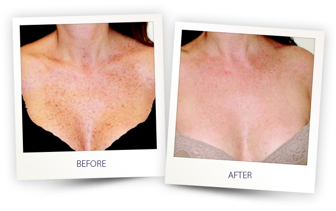 sun spots and freckles pigmented lesion removal