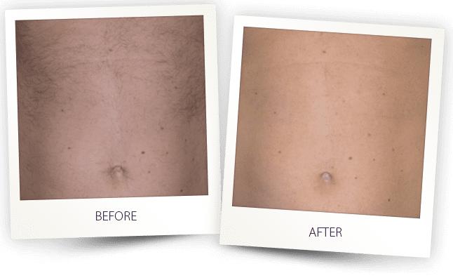 professional laser hair removal by Alma