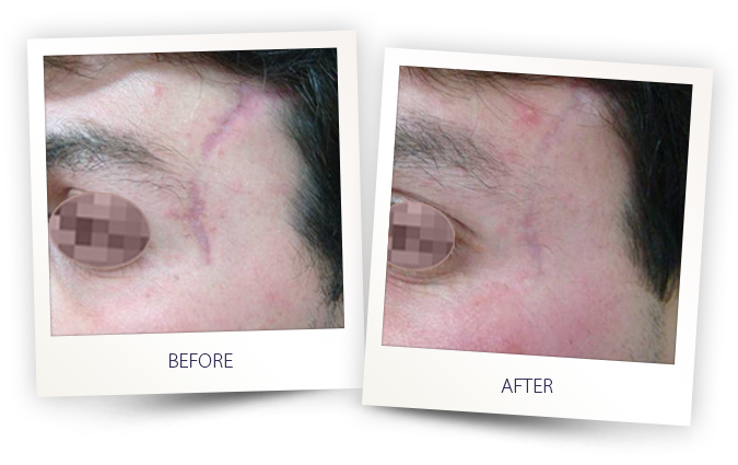 Legato with Impact for scar removal