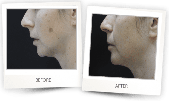 Age spots and pigmented skin lesions