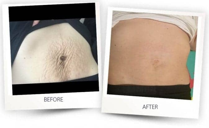 Stretch marks treatment before and after Alma Lasers Australia