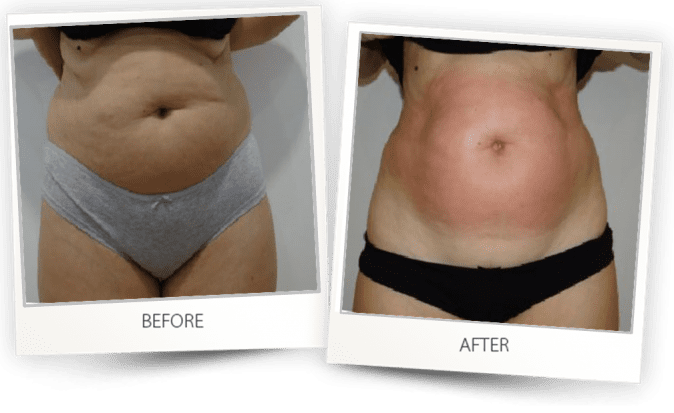 Body contouring with Accent Prime Alma Lasers before and after Australia