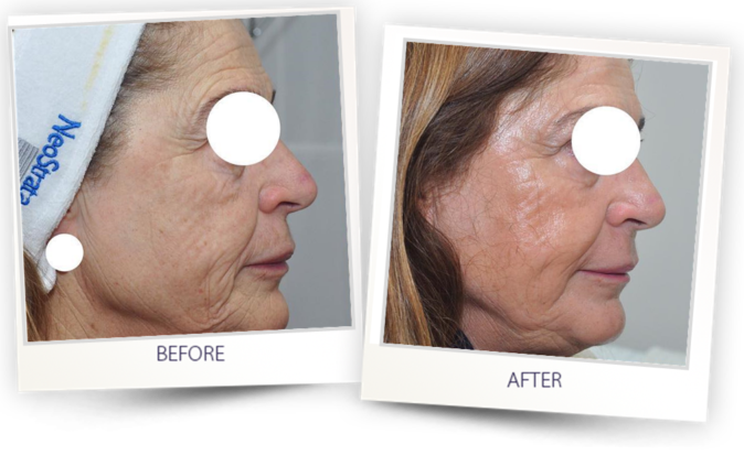 before and after - skin resurfacing with Pixel CO2