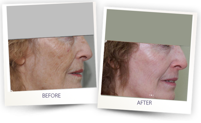 before and after - skin resurfacing with Pixel CO2 alma lasers australia