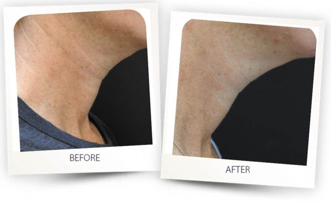 Before and After Skin Rejuvenation treatment with PICO CLEAR
