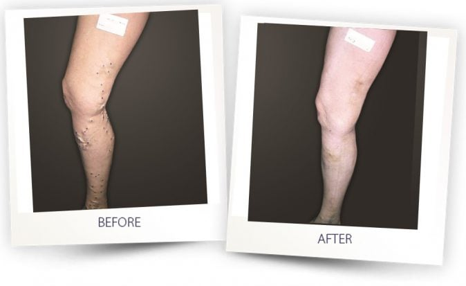 vasculife treatment legs - before - after - Alma Lasers Australia