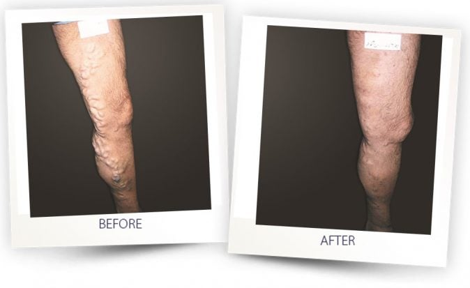 vascular leg treatment - man - Alma Lasers Australia - before and after