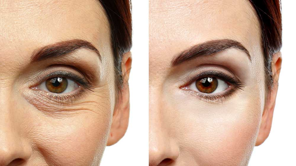 how-to-tigthen-skin-under-eyes
